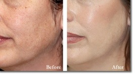 Effective, affordable anti-aging treatment, believe it!